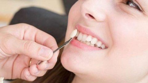 Thu Cúc có dịch vụ làm răng khểnh giả không?