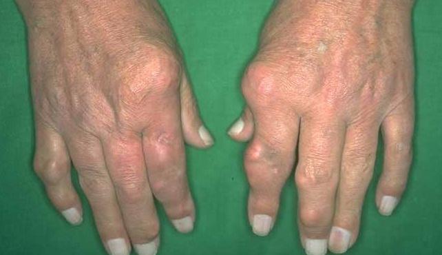 Khám bệnh Gout ở đâu tốt?là căn bệnh của người giàu
