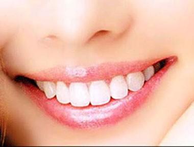 Niềng răng trong suốt phương pháp niềng răng đang được