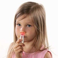 Điều trị viêm mũi xoang xuất tiết