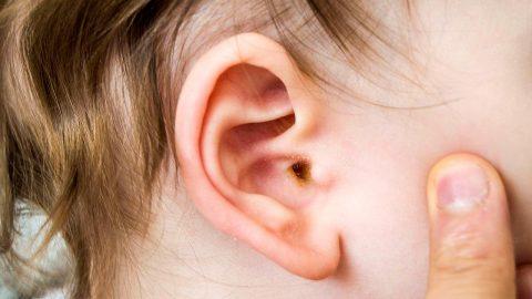 Viêm tai ngoài là gì và những điều cần biết