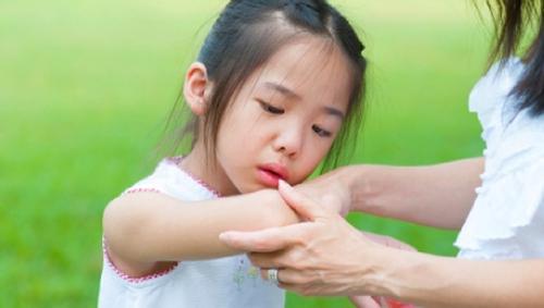 Viêm khớp ở trẻ em có nguy hiểm không? Điều trị như thế nào?