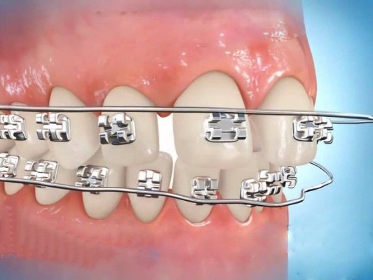 Thẩm mỹ răng thưa – Giải pháp tối ưu cho người răng thưa