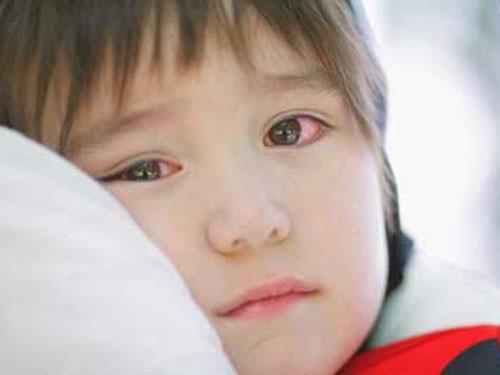 Các bệnh mắt ở trẻ em cần chú ý hơn