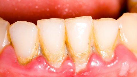 Lấy cao răng có đau không? phòng tránh các bệnh răng miệng