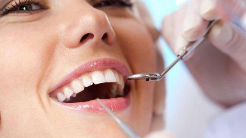 Lấy cao răng có bị nhiễm HIV không? Lấy cao răng ở đâu an toàn?