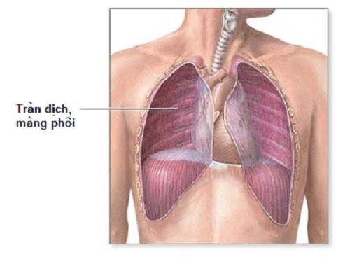 Nguyên nhân gây tràn dịch màng phổi