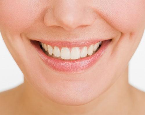 Niềng răng một hàm giá bao nhiêu? chi phí khám hợp lý