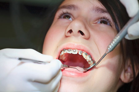 Niềng răng cho người lớn là gì? Nên thực hiện tại đâu?