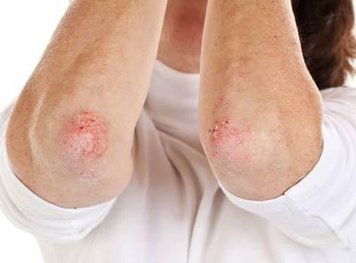 Viêm khớp vẩy nến người bị bệnh vẩy nến