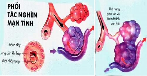 Bệnh phổi tắc nghẽn mạn tính nguy hiểm