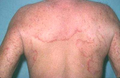 Bệnh nấm da có chữa được không?