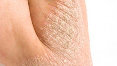 Bệnh vảy nến và cách điều trị hiệu quả nhanh chóng