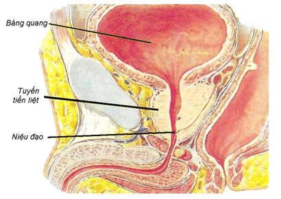 Biến chứng viêm tiền liệt tuyến