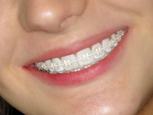 Niềng răng người lớn có gì khác so với niềng răng ở trẻ nhỏ