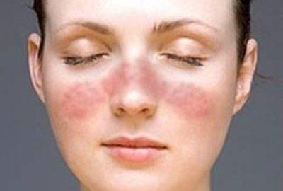 Bệnh lupus ban đỏ có di truyền không?