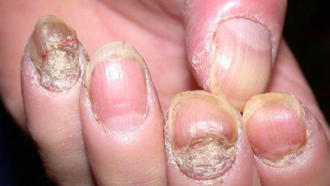 Bệnh vẩy nến ở móng tay, nguyên nhân bệnh là gì