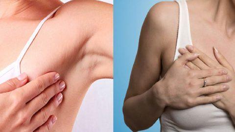 Đau ngực gần nách là bệnh gì? Có phải ung thư?