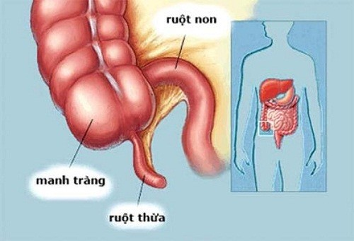 Đau bụng ruột thừa bên nào? không điều trị kịp thời
