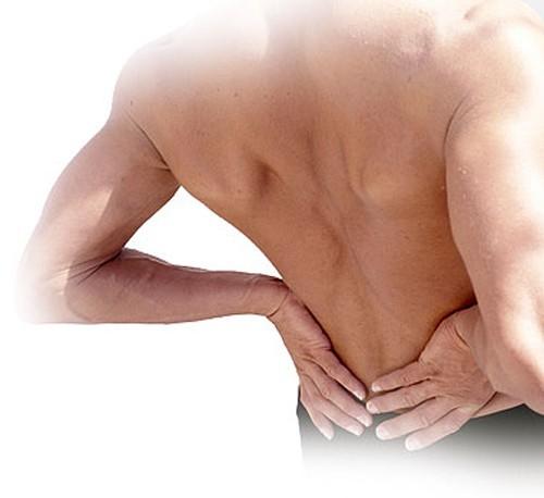Đau lưng là triệu chứng thường gặp ở người bị đau thần kinh tọa