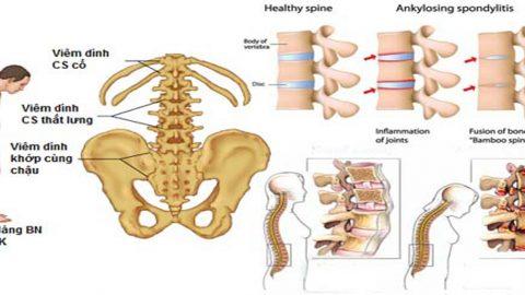 Nguyên nhân đau nhức xương cụt