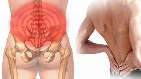 Nhận biết chứng đau dây thần kinh ở lưng
