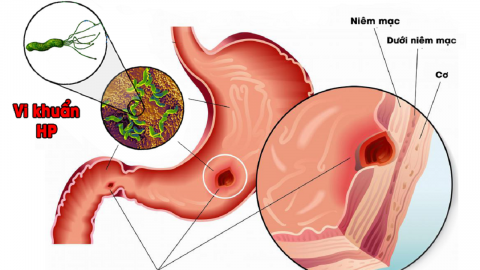 Cách điều trị viêm dạ dày có HP