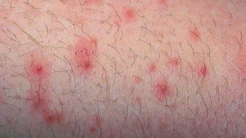 Các bệnh ngoài da thường gặp trong mùa hè cần lưu ý