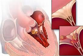 Bệnh viêm cơ tim là gì?Cách điều trị bệnh viêm cơ tim