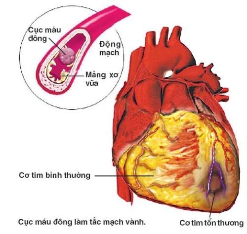 Dấu hiệu đau giữa ngực cần cảnh giác với bệnh mạch vành