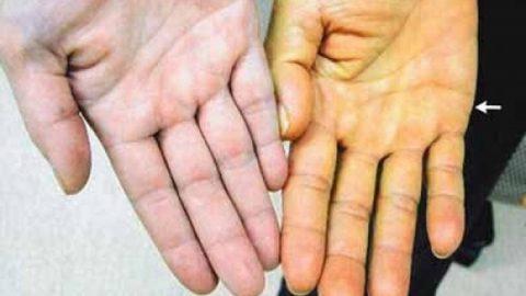 Bệnh xơ gan là gì và có nguy hiểm không?