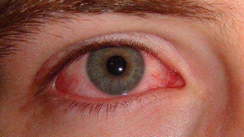 Biến chứng bệnh đau mắt đỏ phụ thuộc vào nguyên nhân nào?