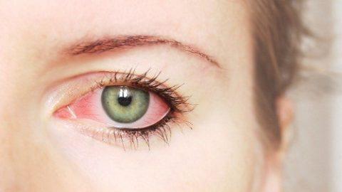 Triệu chứng của đau mắt đỏ có xu hướng tăng nhanh
