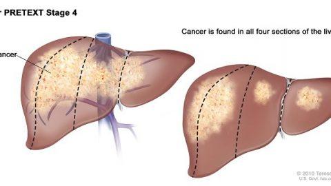 Ung thư gan giai đoạn cuối sống được bao lâu?