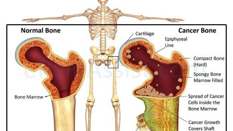 Tìm hiểu về bệnh ung thư xương
