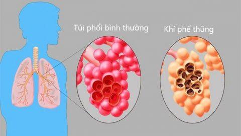 Chẩn đoán khí phế thũng phế quản tận và phế nang