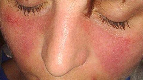 Bệnh lupus ban đỏ ở trẻ em da, thận, phổi, hệ thần kinh