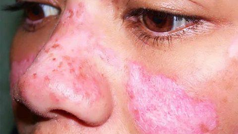 Hiểu về bệnh lupus ban đỏ cách điều trị đúng cách