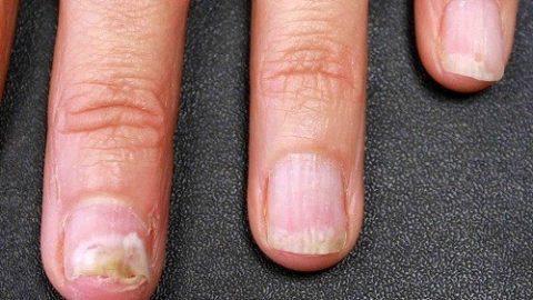 Biểu hiện nấm móng tay