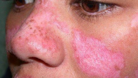 Chẩn đoán lupus ban đỏ có thể đe dọa tính mạng người bệnh