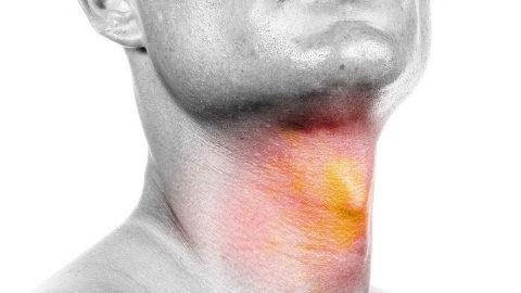 Các phương pháp điều trị bệnh ung thư đầu cổ