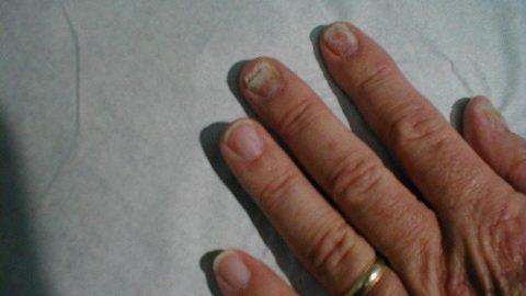 Nấm móng tay chữa như thế nào? là quan tâm hàng
