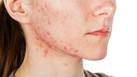 Điều trị viêm da dị ứng như thế nào hiệu quả