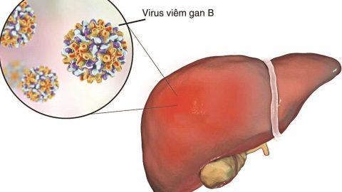 Xét nghiệm kháng thể viêm gan b