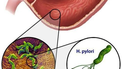 Xét nghiệm virus Hp là gì? có thể lây qua đường ăn uống