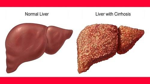 Xơ gan giai đoạn 4 biểu thị giai đoạn cuối của căn bệnh này.