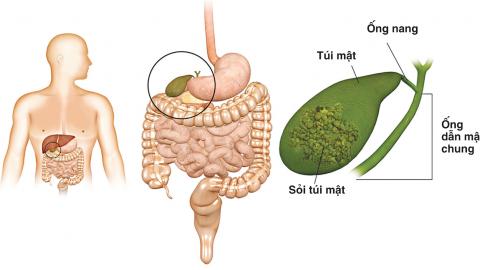 Hỏi đáp về bệnh sỏi mật căn bệnh nguy hiểm