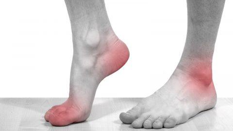 Dấu hiệu của bệnh gút ở bàn chân