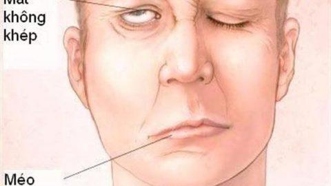 Biểu hiện tai biến mạch máu não