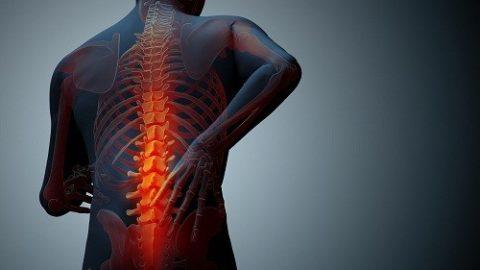 Chữa đau lưng do loãng xương mật độ xương thấp